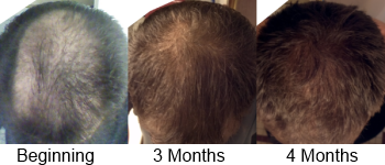 3 Stages Hair Regrowth Hair For Keeps