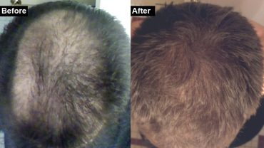 How I treated my hair loss