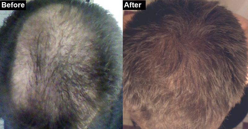 How I treated my hair loss