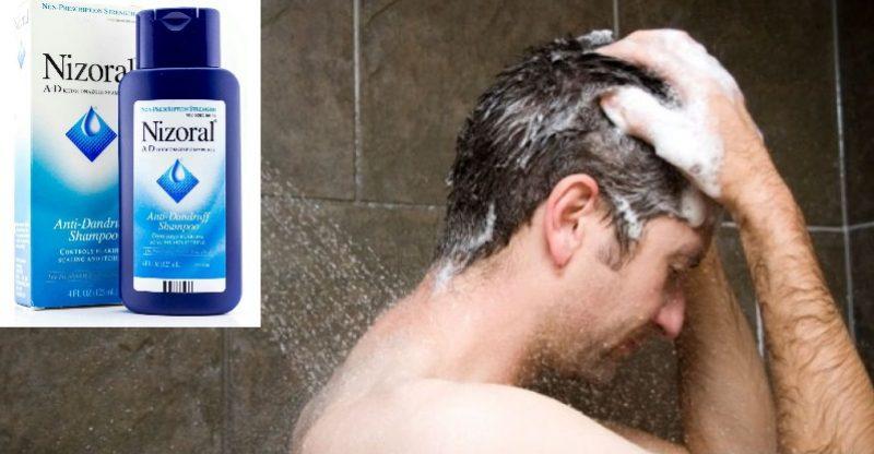 Use Nizoral Shampoo Daily