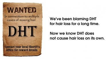 DHT and Hair Loss