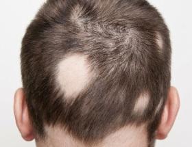 Alopecia Areata on a man's scalp