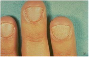 Alopecia Areata Fingernails