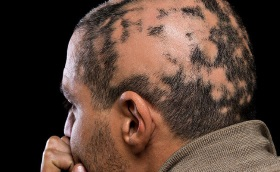 Alopecia Areata Side of Man's Head