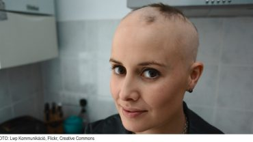 Woman with Alopecia Areata