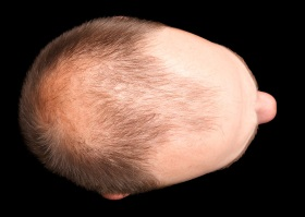 Typical Male Pattern Baldness
