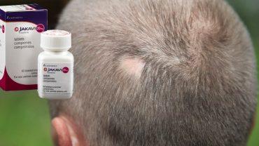 Ruxolitinib Alopecia areata cure