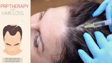 Platelet rich plasma hair treatment