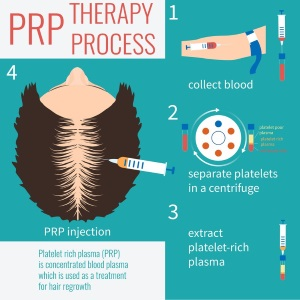 PRP Hair restoration steps