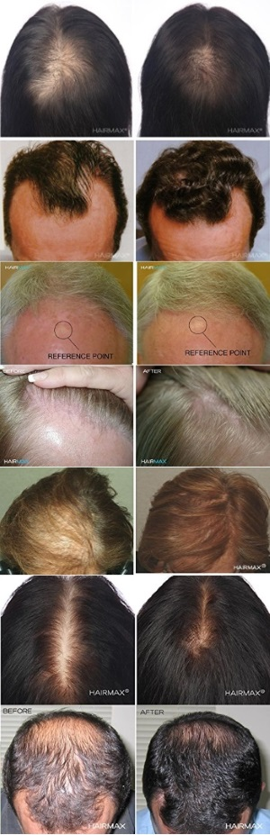 HairMax Laser Hair Growth Before After