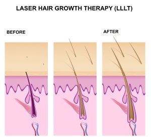 Does Laser Hair Growth Work Here Are Your Options For