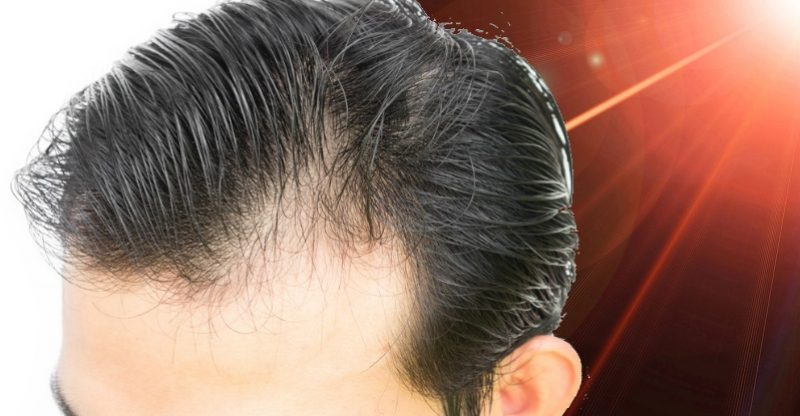 does lllt work for hair loss