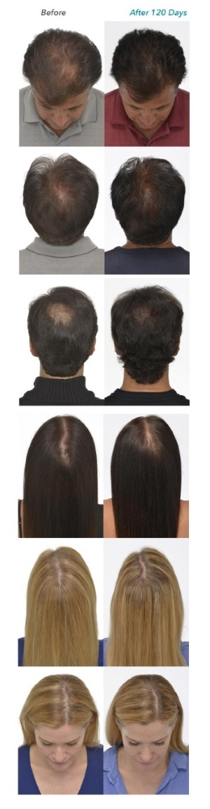 iGrow Laser Hair Growth Before After Pictures