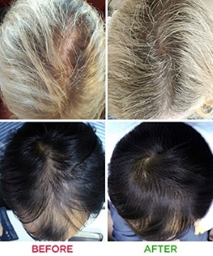 iRestore Laser Hair Growth Before After Pictures
