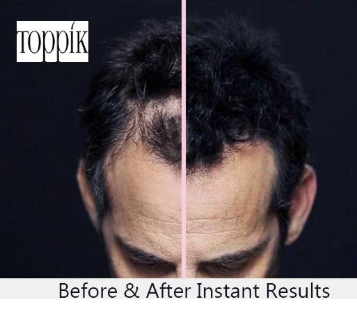 Nizoral for hair loss – Does Nizoral regrow hair? - Hair for